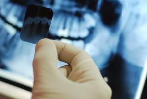Dental-XRay-Certification - Top Dental PPO Negotiator